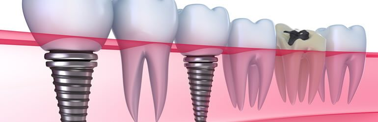dentures-option-dental-implants-boise-idaho
