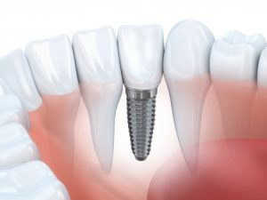 Dental Implant - Cosmetic Dentistry