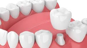 Dental Crown fitting over the existing tooth structure. To enhance appearance and smile.